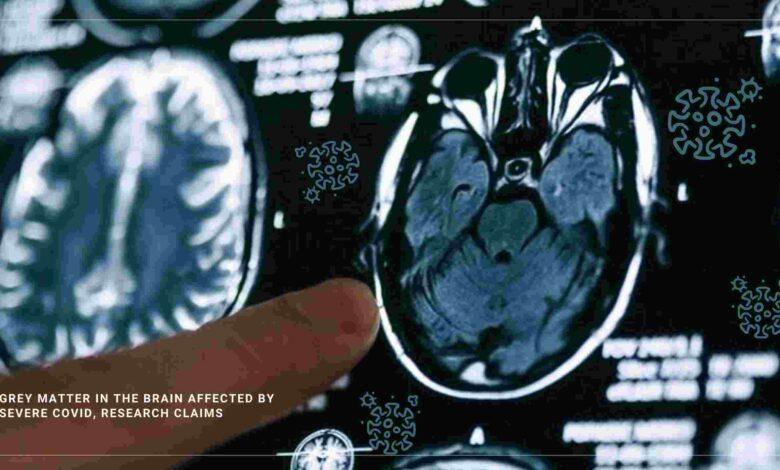 grey matter in brain depleted