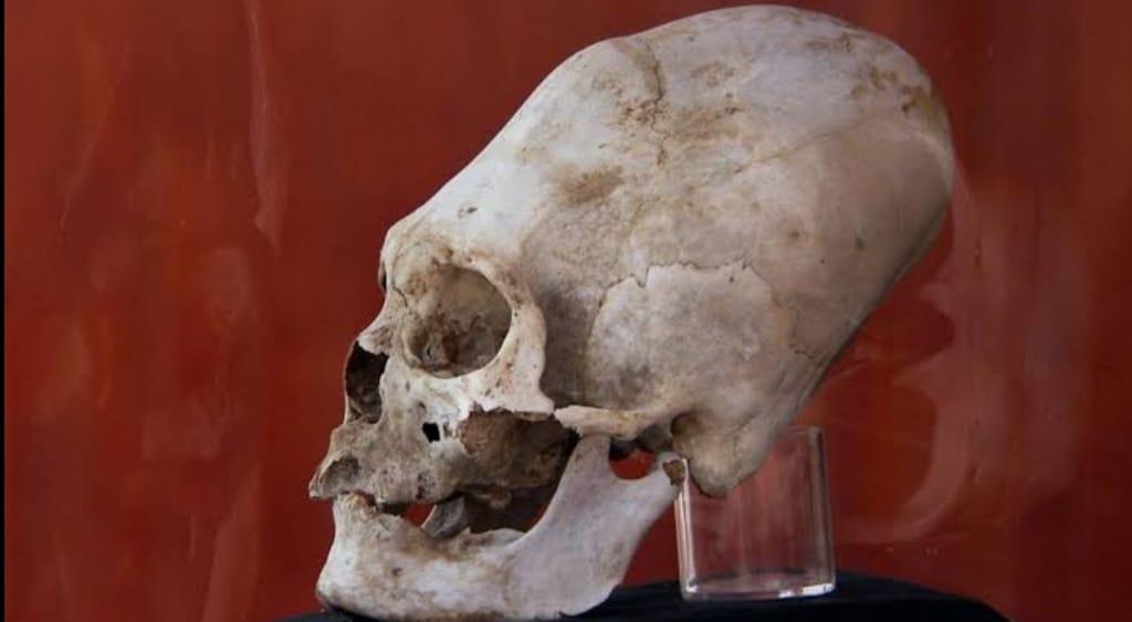 skull of Nazca people.
